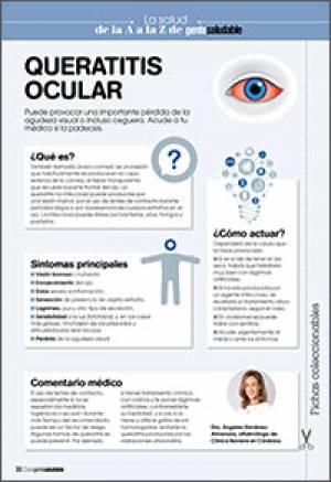 Queratitis ocular