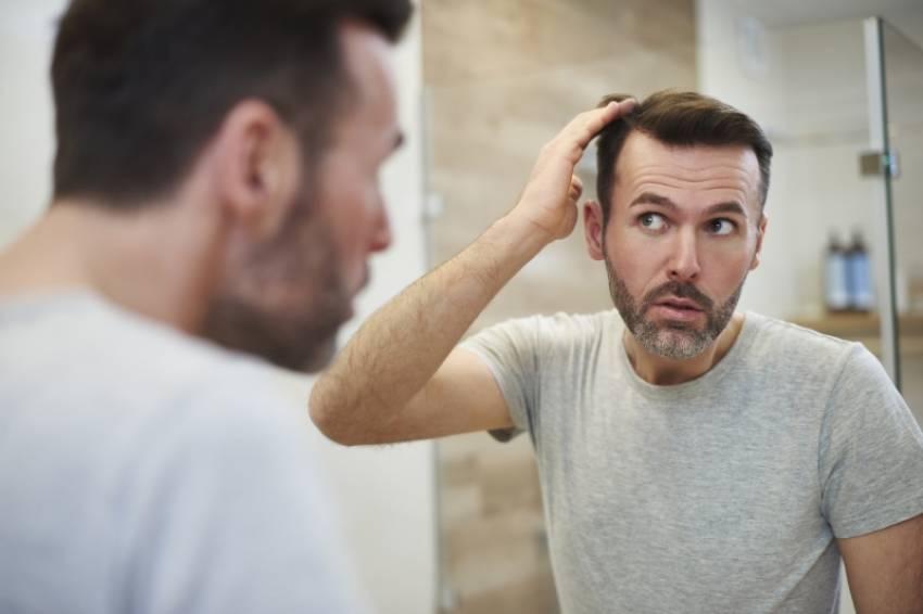 Alopecia hereditaria ¿Qué puedes hacer?
