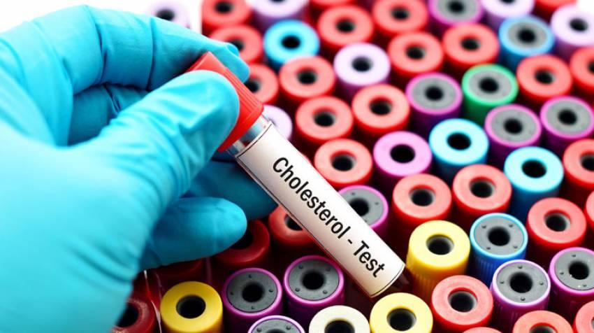 Perfil lipídico: Indicador de riesgo coronario