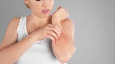 Dermatitis de contacto: Acaba con las irritaciones